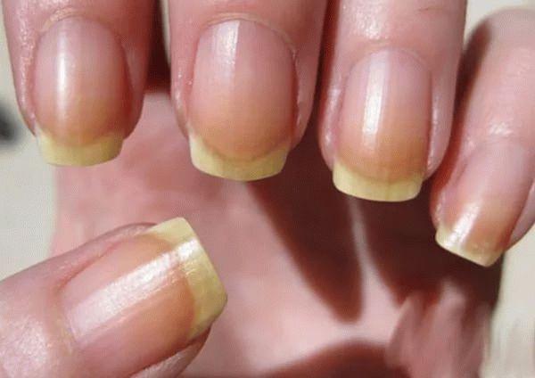 Вред от гель-лака для ногтей